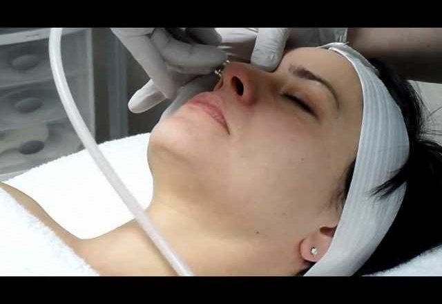 Microdermabrasion Will Save Your Skin